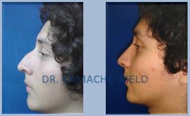 Breast Augmentation Tijuana,Tijuana Plastic Surgeons,Tijuana